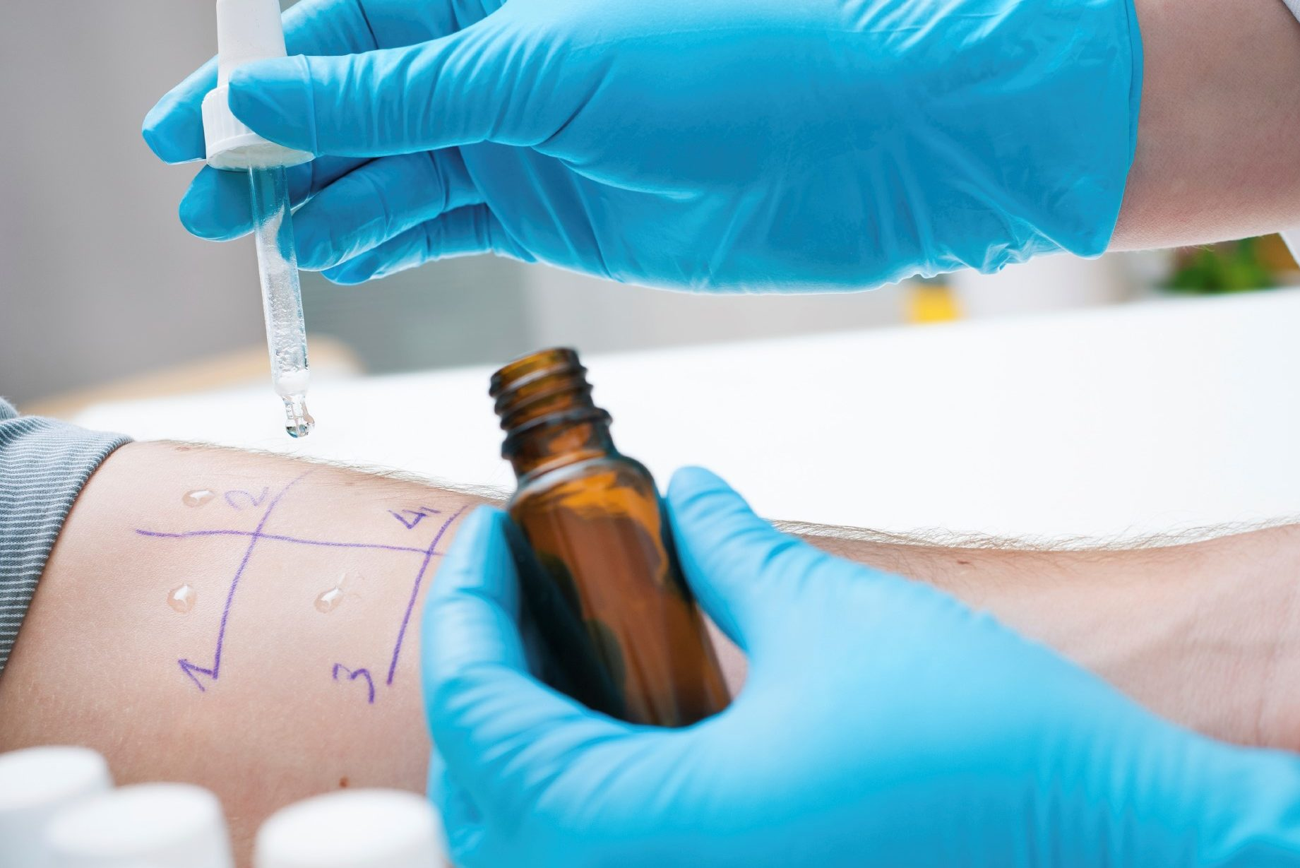 Skin prick allergy test