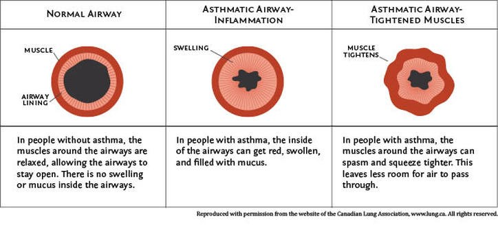 Illustration comparing normal airways and asthmatic airways.  Normal Airway: In people without asthma, the muscles around the airways are relaxed, allowing the airways to stay open. There is no swelling or mucus inside the airways. Asthmatic Airway showing inflammation: In people with asthma, the inside of the airways can get red, swollen, and filled with mucus. Asthmatic Airway showing tightened Muscles: In people with asthma, the muscles around the airways can spasm and squeeze tighter. This leaves less room for air to pass through. Reproduced with permission from the website of the Canadian Lung Association, www.lung.ca. All rights reserved.