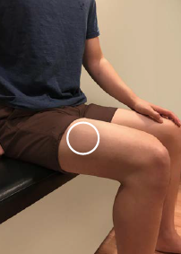 Circle on thigh showing where you should use auto-injector