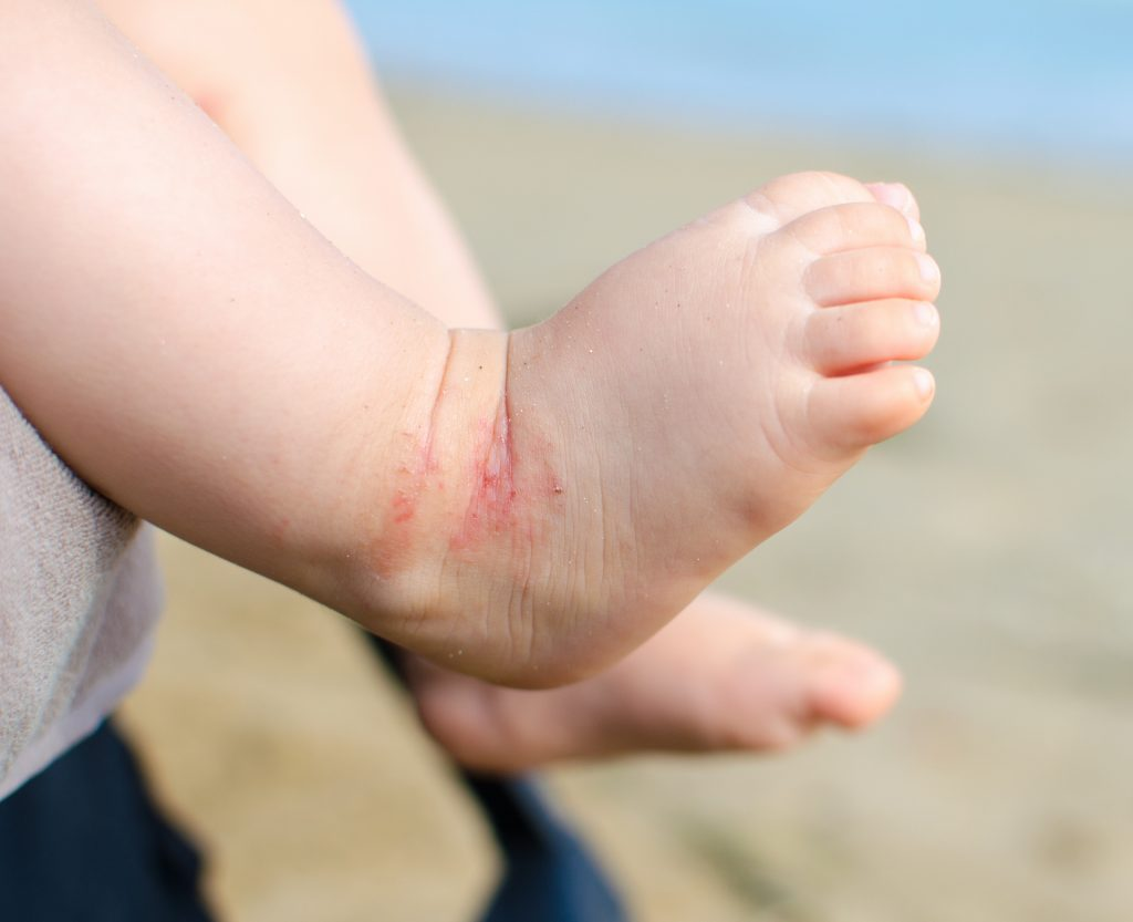 Closeup shot of infant's foot with a red rash